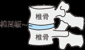 椎間板の図